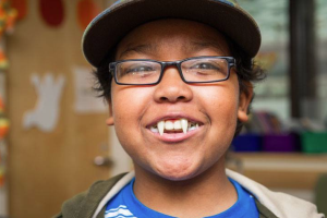 Mahki, a patient at Dana-Farber's Jimmy Fund Clinic, sported some spooky vampire fangs.